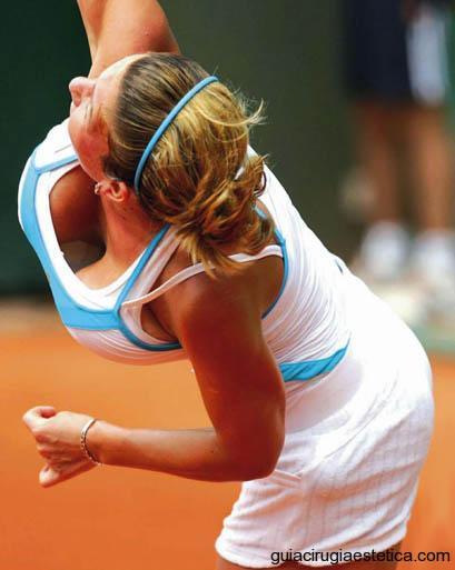 Simona Halep, tenista que se someterá a una mamoplastia