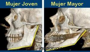 Significativos cambios en los huesos faciales -- particularmente la mandíbula -- occur as people age and contribute to an aging appearance. (Créditos: University of Rochester Medical Center)