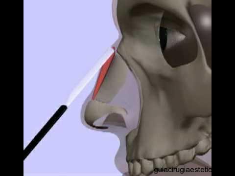 Rinoplastia o Cirugía Estética de Nariz