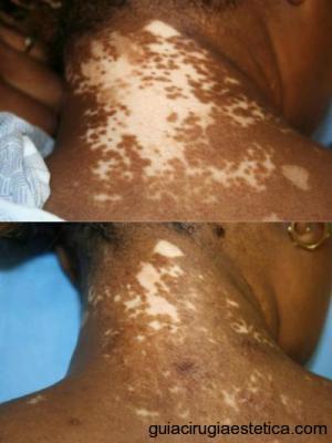 vitiligo-mkpt-transplante