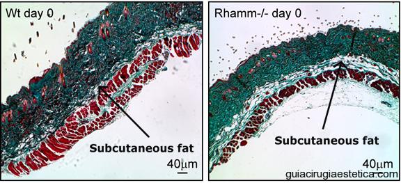 Imágenes microsópicas de tejidos de ratón sometidos a bloqueo RHAMM