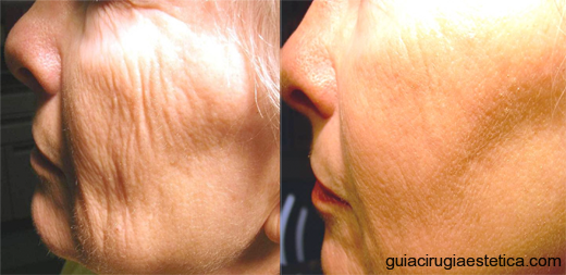 Tratamiento lifting facial con laser fraccional, antes y despus.