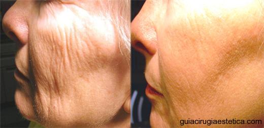 Tratamiento lifting facial con laser fraccional, antes y después.