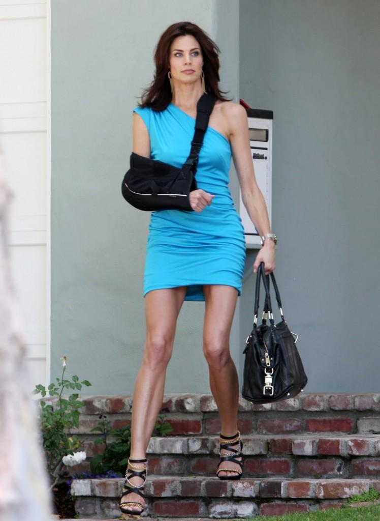 Riesgo de fracturas después de una cirugía de pérdida de peso