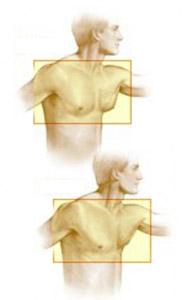 """Ginecomastia masculina, """"antes y después""""."""