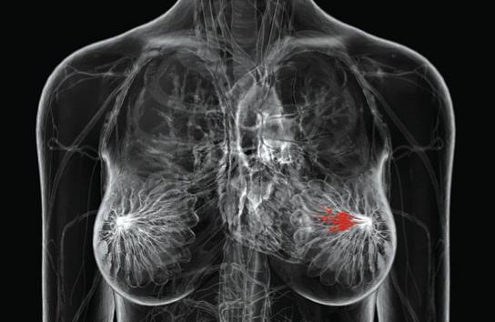 Ciber bisturi en el tratamiento de cancer de pecho