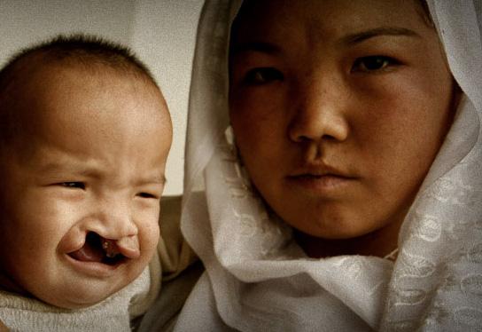 El programa SmileTrain está presente en 84 países con 2.200 cirujanos afiliados.