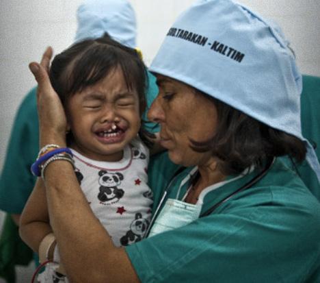 Cada año 165.000 niños nacen con labio leporino o paladar hendido, muchos de ellos no pueden pagar una operación.