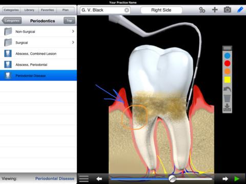 aplicaciones-odontologicas-dds-gp