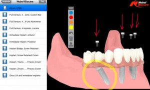 dds-gp-ipad-implantes-dentales