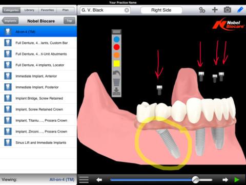 dds-gp-ipad-implantes-dentales