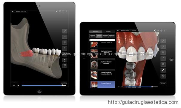 Apps Odontológicas - 3D Dental Patient Education
